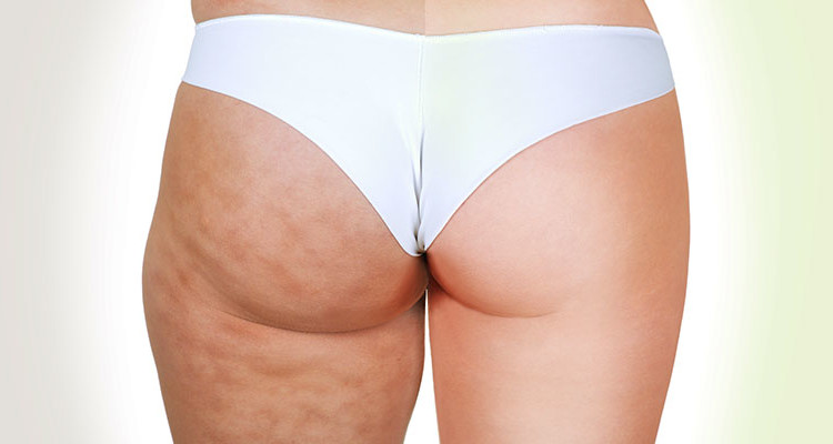 can you really get rid of cellulite