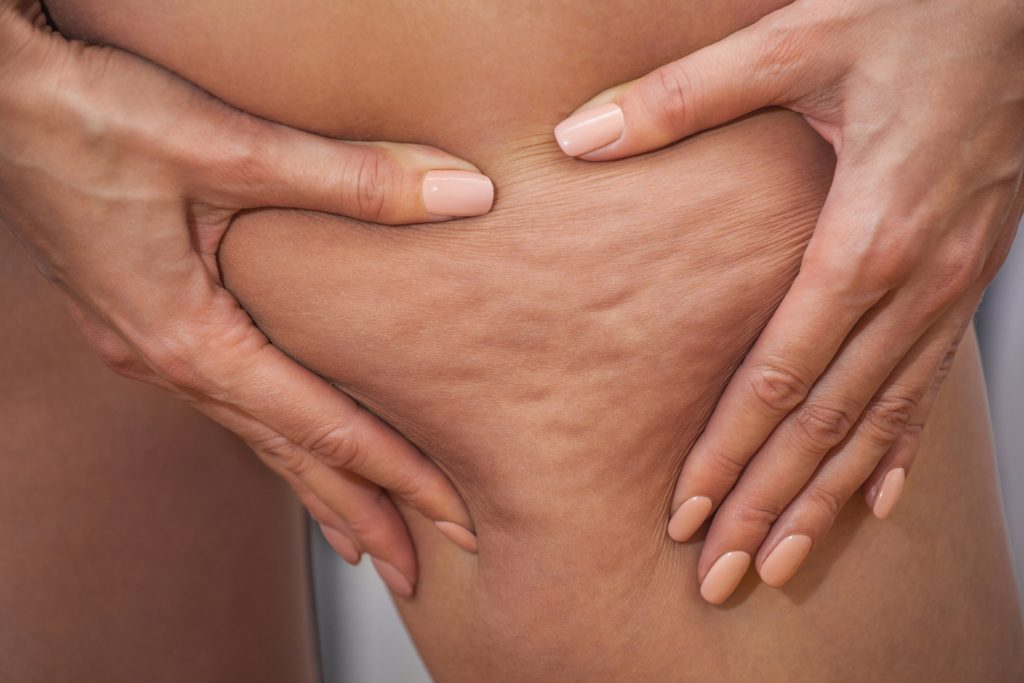What is Cellulite? Causes, Prevention, Myths, Facts and Treatment