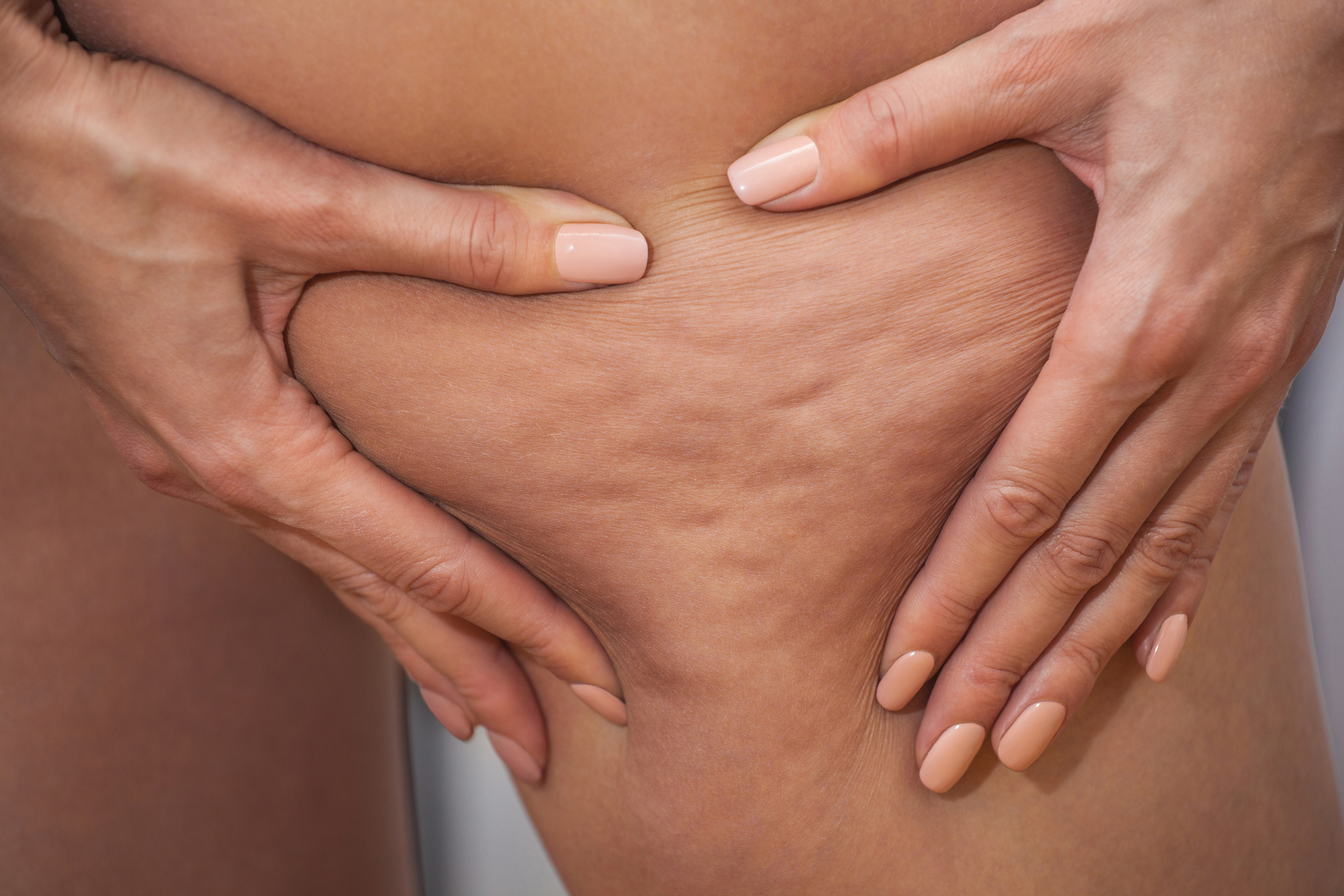 Cellulite: Causes, Prevention, Myths, Facts and Treatment