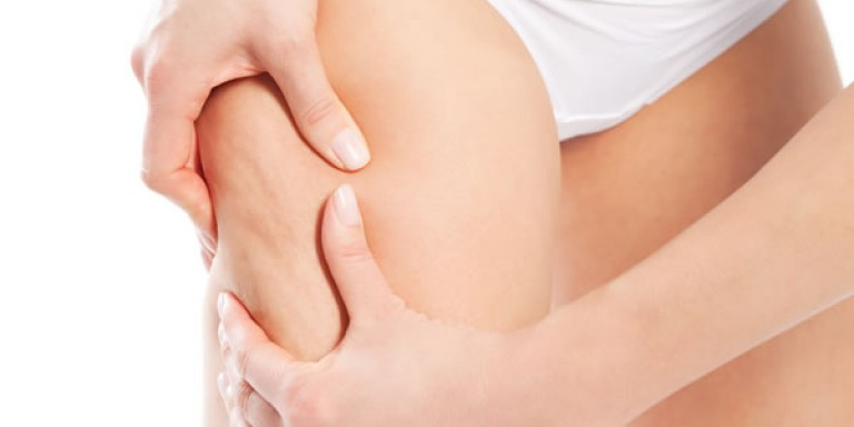 How to Get Rid of Cellulite: The Ultimate Guide [Updated]