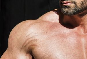 How to Get Rid of Stretch Marks for Men: 7 Natural Remedies