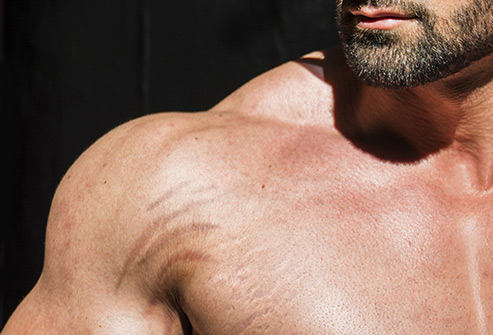 how to get rid of stretch marks for men