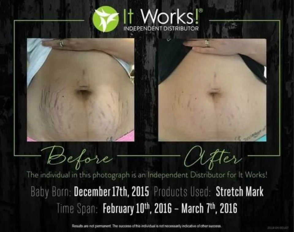 it works stretch mark cream results