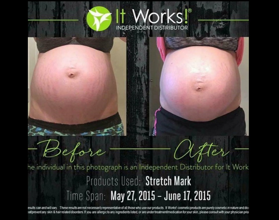 It Works Stretch Mark Cream Does It Really Work Or Is It A Scam