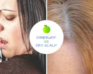 Dandruff vs Dry Scalp: What's the Difference and How to Treat Them