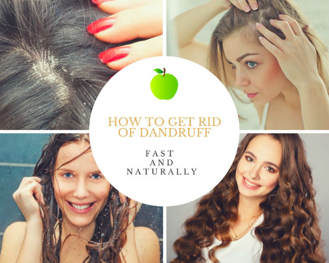 how to get rid of dandruff fast and naturally