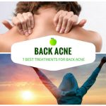 Back Acne: The 7 Best Treatments for Back Acne