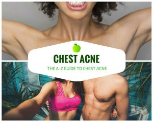 Chest Acne: The A-Z Guide to Chest Acne