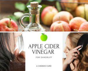 Apple Cider Vinegar for Dandruff: A Hidden Cure
