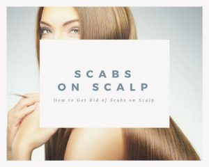 Scalp Scabs: How to Get Rid of Scabs on Scalp
