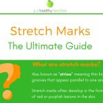 [Infographic] What are Stretch Marks? The Ultimate Guide