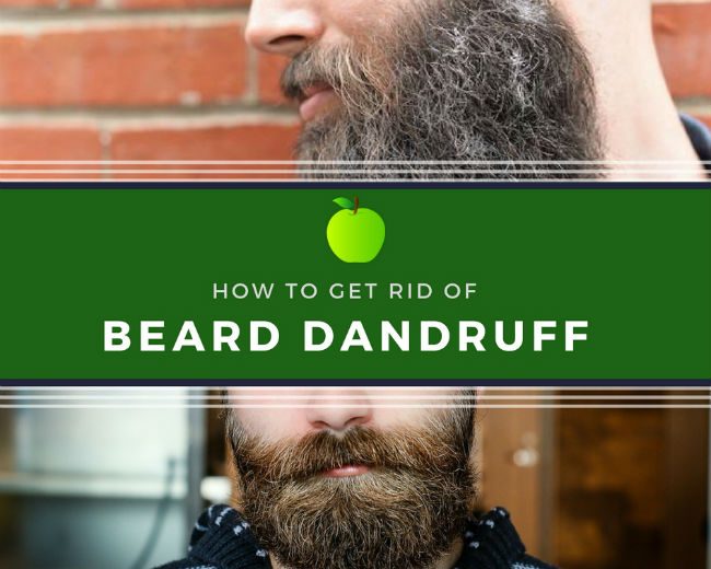 How to Get Rid of Beard Dandruff Effectively