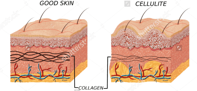 Collagen - the root cause of cellulite